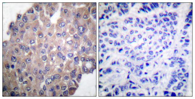 Phospho-PLCG1 (Tyr771) Antibody (PA5-38090) in Immunohistochemistry (Paraffin)