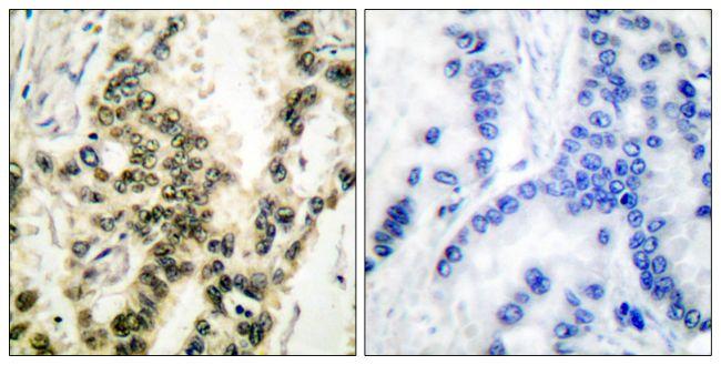 Phospho-SRF (Ser99) Antibody (PA5-38092)