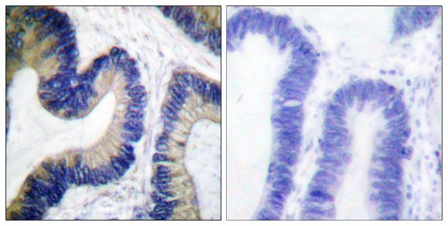 Phospho-4E-BP1 (Ser64) Antibody (PA5-38096)