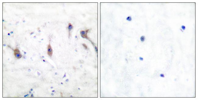 ARC Antibody (PA5-38097) in Immunohistochemistry (Paraffin)