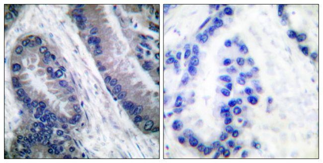 Caspase 1 (Cleaved Asp210) Antibody (PA5-38100)