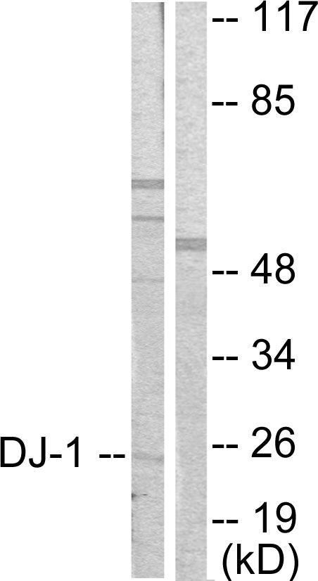 DJ-1 Antibody (PA5-38101) in Western Blot