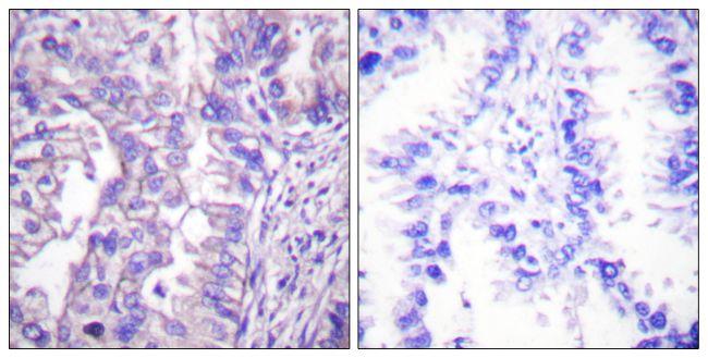 GAD65/GAD67 Antibody (PA5-38102)