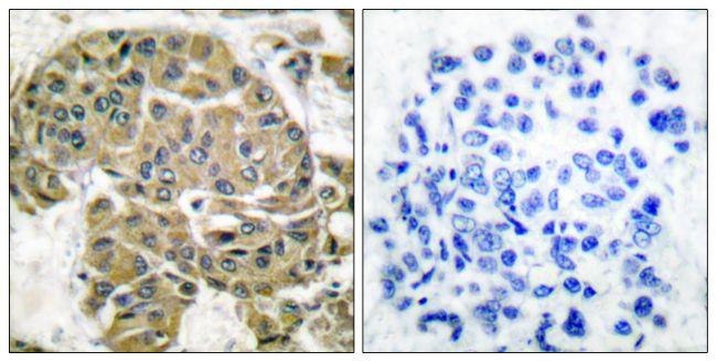 Mammaglobin B Antibody (PA5-38104)