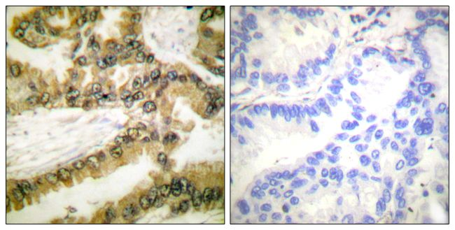 Phospho-AKT1 (Thr450) Antibody (PA5-38108)