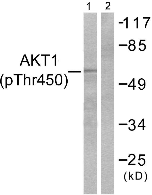 Phospho-AKT1 (Thr450) Antibody (PA5-38108) in Western Blot