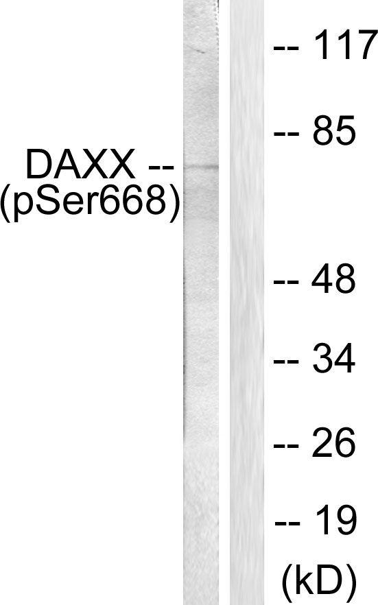 Phospho-DAXX (Ser668) Antibody (PA5-38111) in Western Blot