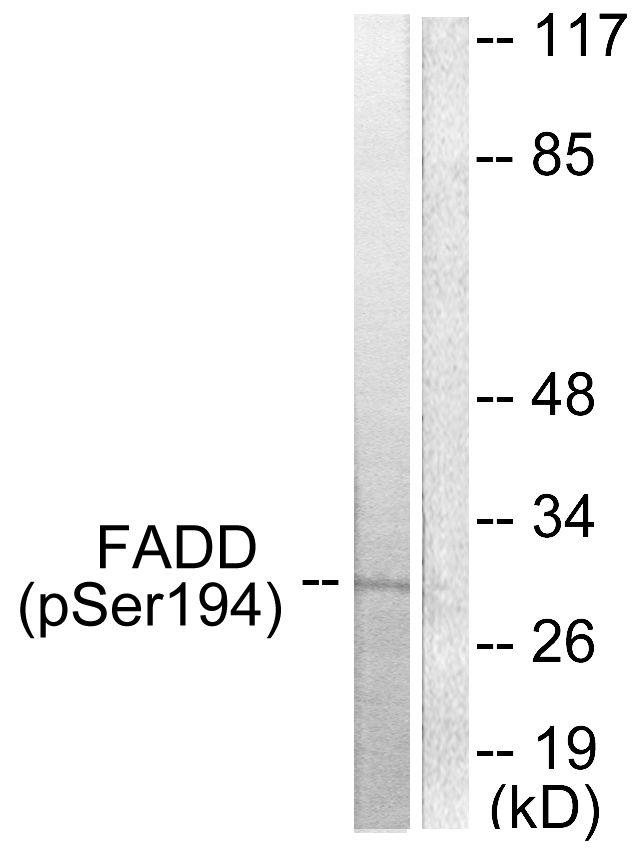 Phospho-FADD (Ser194) Antibody (PA5-38113) in Western Blot