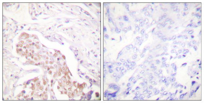 Phospho-FANCD2 (Ser222) Antibody (PA5-38114)