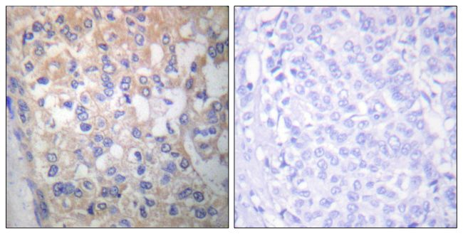 Phospho-Fyn (Tyr530) Antibody (PA5-38115)
