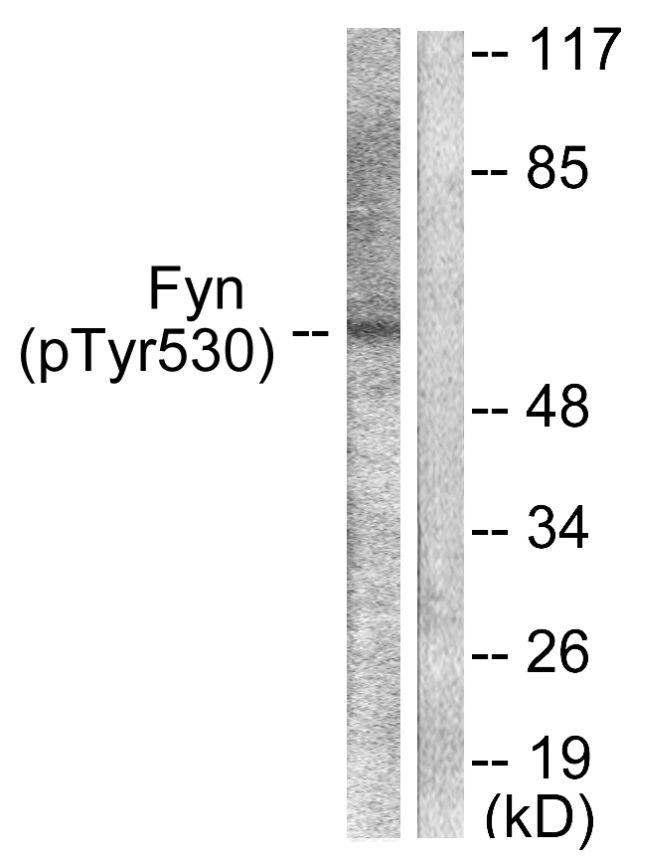 Phospho-Fyn (Tyr530) Antibody (PA5-38115) in Western Blot