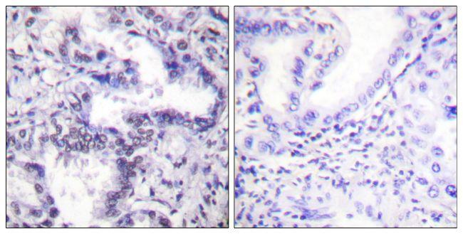 Phospho-Ku80 (Thr714) Antibody (PA5-38118) in Immunohistochemistry (Paraffin)