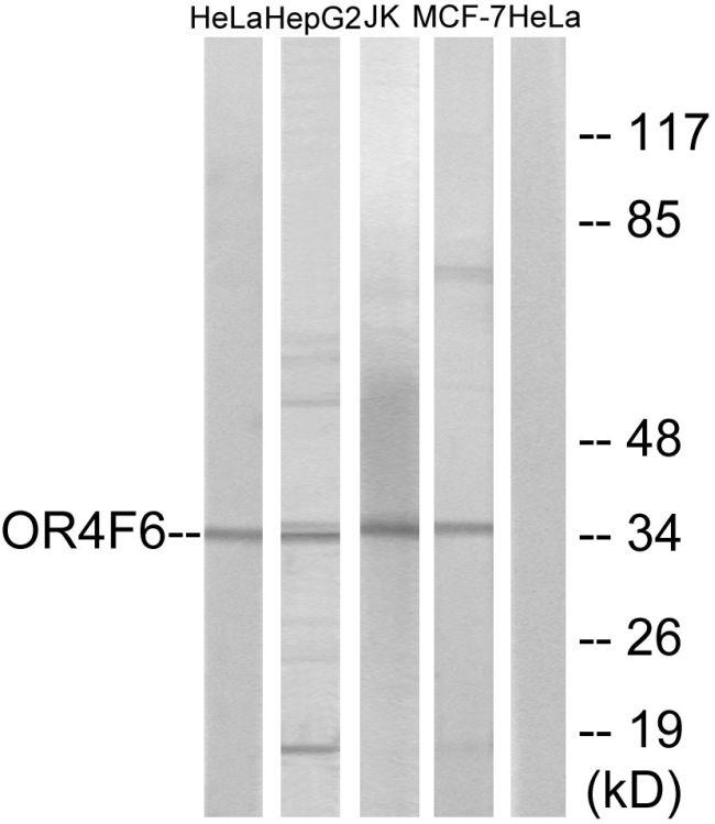 OR4F6 Antibody (PA5-38120) in Western Blot