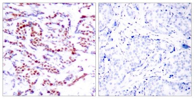 Phospho-ATF2 (Ser94, Ser112) Antibody (PA5-38122)