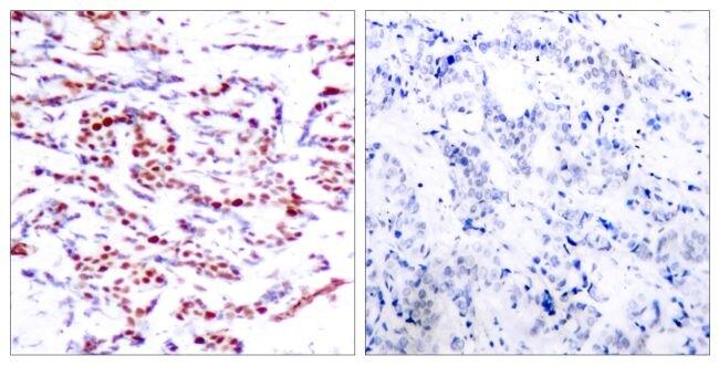 Phospho-ATF2 (Thr53, Thr71) Antibody (PA5-38124)