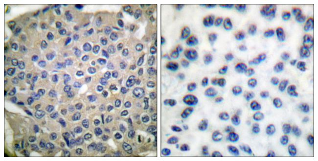 Phospho-Cortactin (Tyr466) Antibody (PA5-38130)