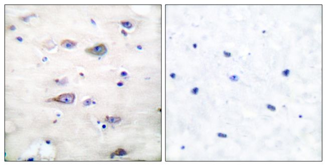 Phospho-GluR2 (Ser880) Antibody (PA5-38134)