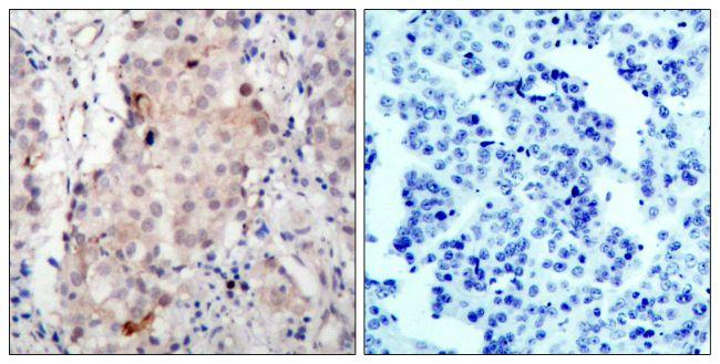 Phospho-ErbB2 (Tyr1221, Tyr1222) Antibody (PA5-38136) in Immunohistochemistry (Paraffin)