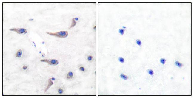 Phospho-MARCKS (Ser163) Antibody (PA5-38139) in Immunohistochemistry (Paraffin)