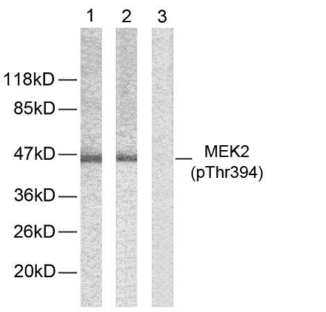 Phospho-MEK2 (Thr394) Antibody (PA5-38140) in Western Blot