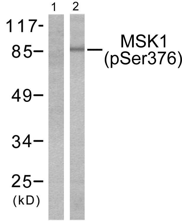 Phospho-MSK1 (Ser376) Antibody (PA5-38141) in Western Blot