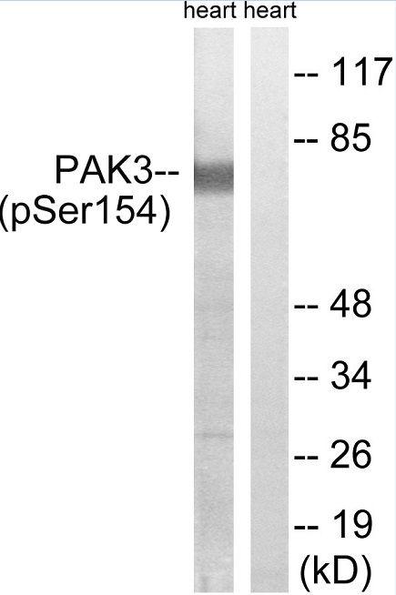 Phospho-PAK3 (Ser154) Antibody (PA5-38153) in Western Blot