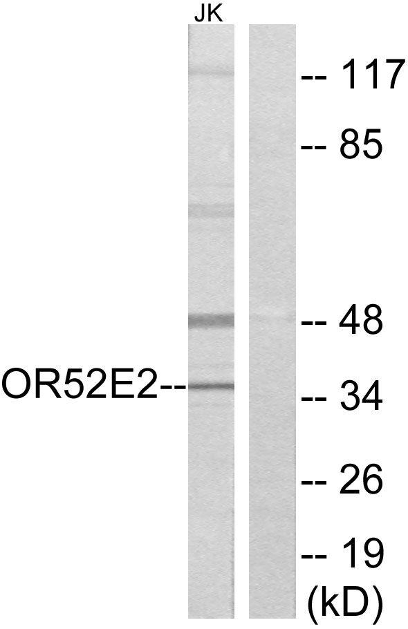 OR52E2 Antibody (PA5-38179)