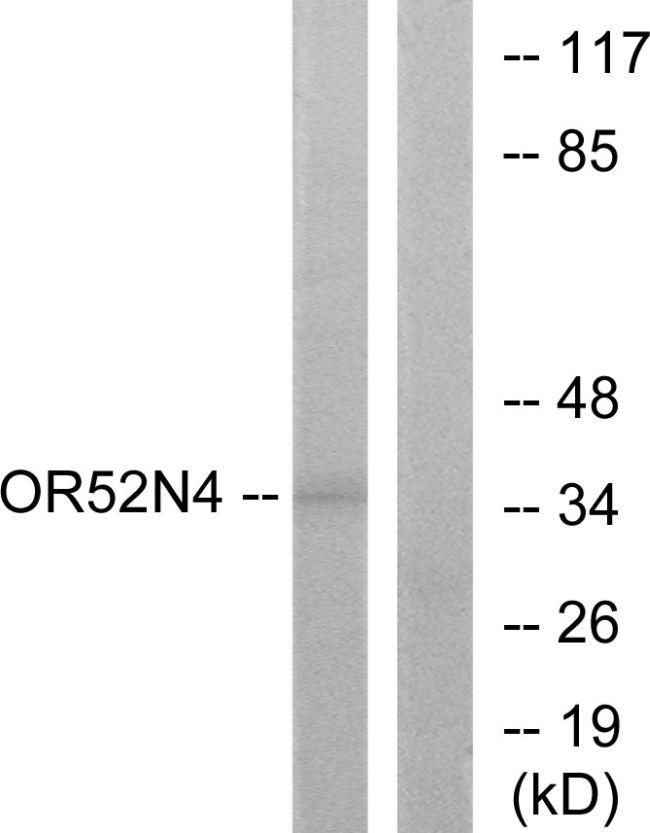 OR52N4 Antibody (PA5-38181)