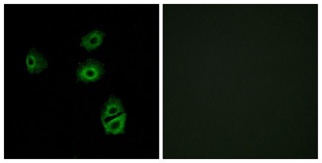 OR2B2 Antibody (PA5-38212)