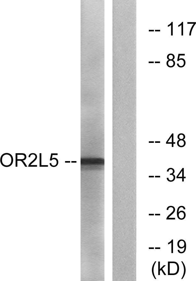 OR2L5 Antibody (PA5-38219) in Western Blot