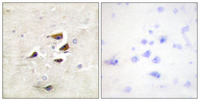 CaMKII alpha/beta/delta Antibody (PA5-38239) in Immunohistochemistry (Paraffin)