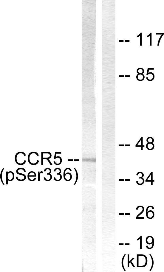 Phospho-CCR5 (Ser336) Antibody (PA5-38243)