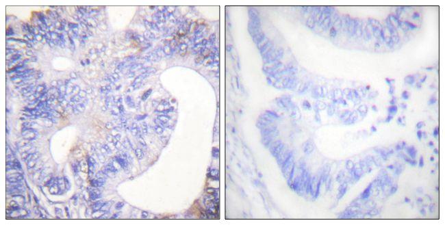 Phospho-PLCG2 (Tyr753) Antibody (PA5-38244) in Immunohistochemistry (Paraffin)