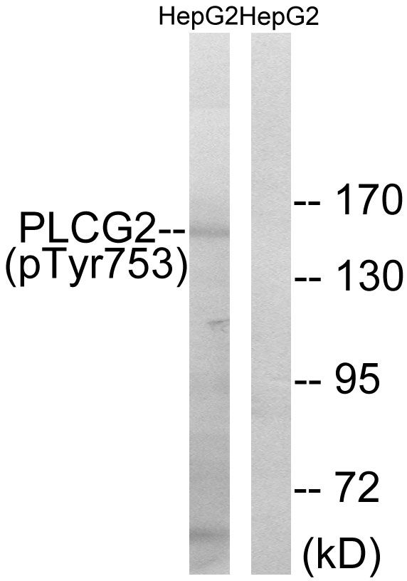 Phospho-PLCG2 (Tyr753) Antibody (PA5-38244) in Western Blot