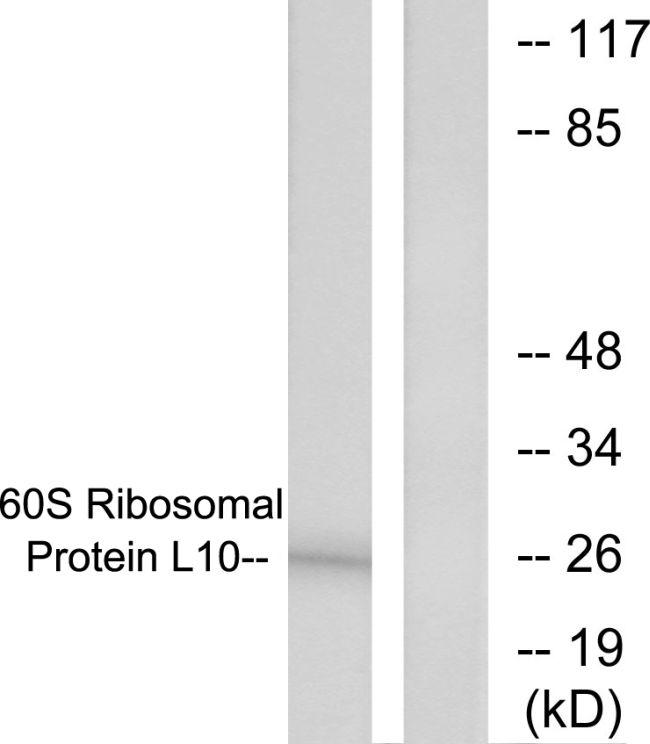 RPL10 Antibody (PA5-38249)