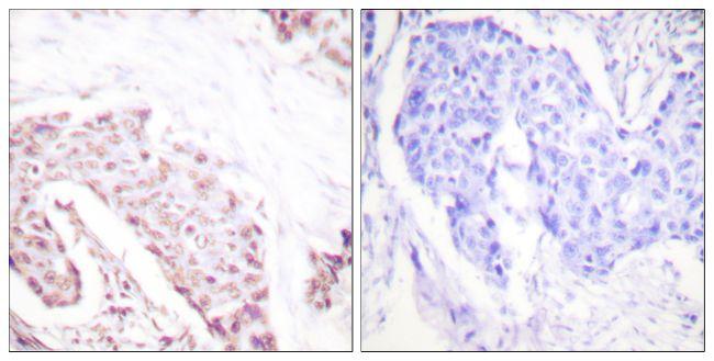Phospho-AKT1 (Ser124) Antibody (PA5-38251) in Immunohistochemistry (Paraffin)