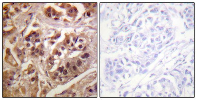 GRF-1 Antibody (PA5-38253) in Immunohistochemistry (Paraffin)