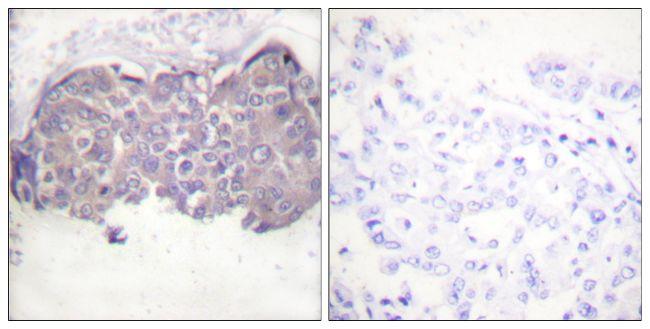 Phospho-HSL (Ser552) Antibody (PA5-38254) in Immunohistochemistry (Paraffin)