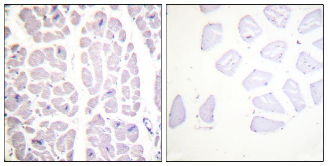 Phospho-IKK alpha/beta (Ser180, Ser181) Antibody (PA5-38255) in Immunohistochemistry (Paraffin)
