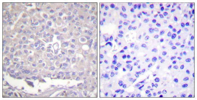 Phospho-ITGB1 (Thr788) Antibody (PA5-38256) in Immunohistochemistry (Paraffin)