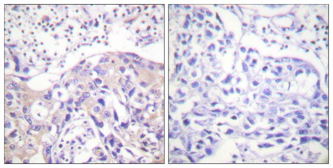 Phospho-alpha Adducin (Thr445) Antibody (PA5-38258) in Immunohistochemistry (Paraffin)