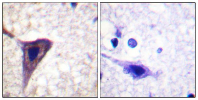 Phospho-BID (Ser78) Antibody (PA5-38262) in Immunohistochemistry (Paraffin)
