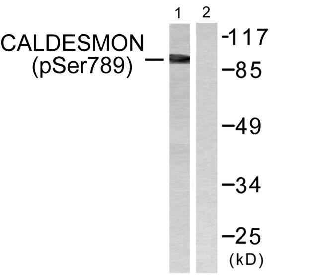 Phospho-Caldesmon (Ser789) Antibody (PA5-38263) in Western Blot