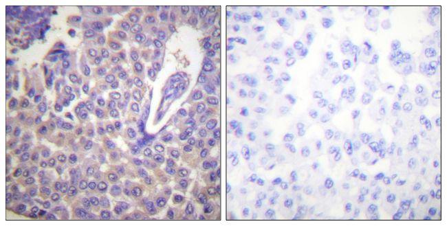 Phospho-Calnexin (Ser583) Antibody (PA5-38264) in Immunohistochemistry (Paraffin)