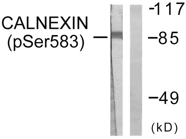 Phospho-Calnexin (Ser583) Antibody (PA5-38264) in Western Blot