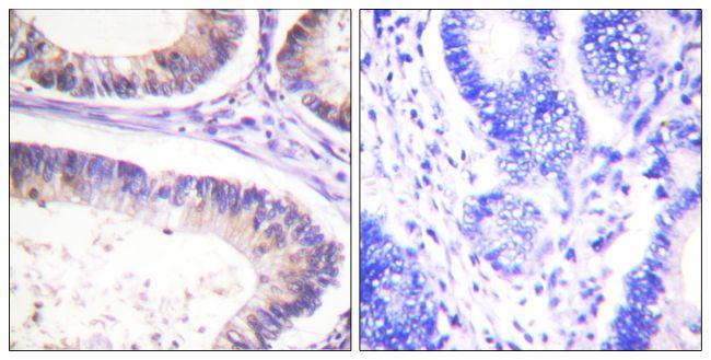 Phospho-c-Cbl (Tyr674) Antibody (PA5-38267) in Immunohistochemistry (Paraffin)