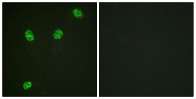 Phospho-ERF (Thr526) Antibody (PA5-38268) in Immunofluorescence