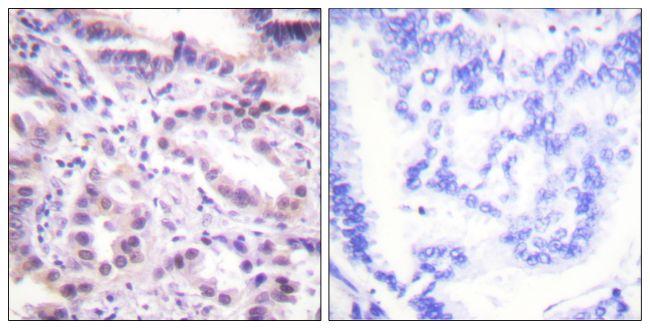 Phospho-ERF (Thr526) Antibody (PA5-38268) in Immunohistochemistry (Paraffin)