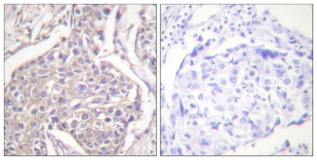 Phospho-HSP20 (Ser16) Antibody (PA5-38278) in Immunohistochemistry (Paraffin)
