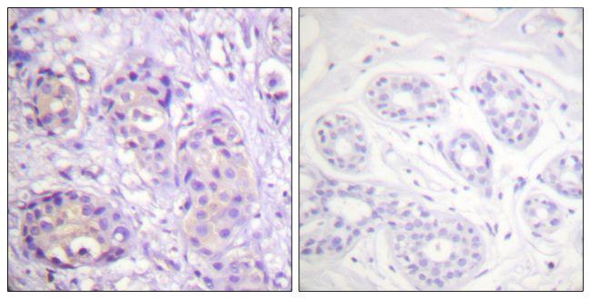 Phospho-IKK beta (Tyr199) Antibody (PA5-38280)